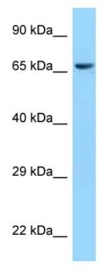 Western blot - Anti-CLPX antibody (ab123110)