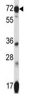 Western blot - Anti-SLC41A2  antibody (ab123119)