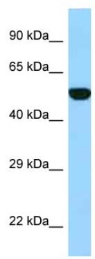 Western blot - Anti-Folylpolyglutamate synthase antibody (ab123120)