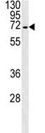 Western blot - Anti-SLC22A1 antibody (ab123128)