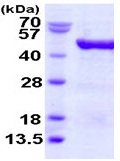 SDS-PAGE - eIF4A3 protein (ab123151)