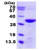 SDS-PAGE - UNC119B protein (Tagged-His Tag) (ab123153)