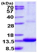 SDS-PAGE - ARL9 protein (Tagged-His Tag) (ab123161)