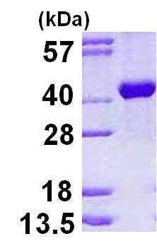 SDS-PAGE - ALDOB protein (His tag) (ab123165)
