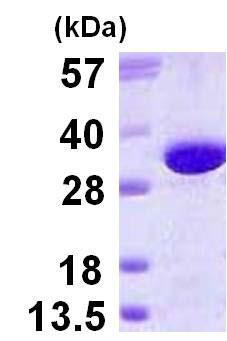SDS-PAGE - Glutamyl hydrolase gamma protein (His tag) (ab123172)