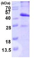 SDS-PAGE - MAD2L1 binding protein (His tag) (ab123183)