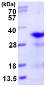 SDS-PAGE - RPL8 protein (His tag) (ab123188)