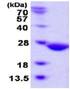 SDS-PAGE - ABHD14B protein (His tag) (ab123190)