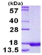 SDS-PAGE - RPLP2 protein (His tag) (ab123191)