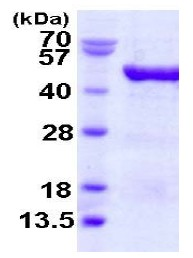 SDS-PAGE - VAT1 protein (His tag) (ab123198)