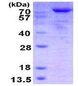 SDS-PAGE - TARS protein (His tag) (ab123210)