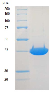 SDS-PAGE - DNA Polymerase beta protein (ab123225)