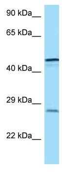 Western blot - Anti-TREM1 antibody (ab123230)