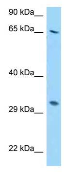 Western blot - Anti-RPS2 antibody (ab123231)