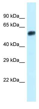 Western blot - Anti-EEPD1 antibody (ab123232)