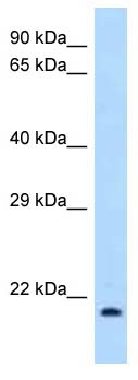 Western blot - Anti-IL1RA antibody (ab123235)