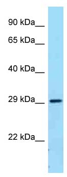 Western blot - Anti-CD32B antibody (ab123240)