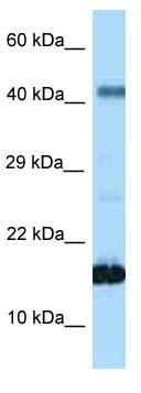 Western blot - Anti-Somatostatin antibody (ab123245)