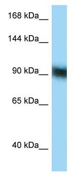 Western blot - Anti-ZFP62 antibody (ab123249)