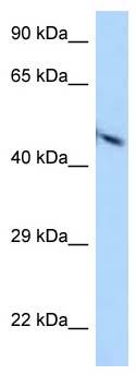 Western blot - Anti-Poliovirus Receptor antibody (ab123252)