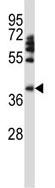 Western blot - Anti-FOXD1 antibody (ab123336)