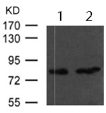 Western blot - Anti-Glycogen synthase 1 antibody (ab123377)