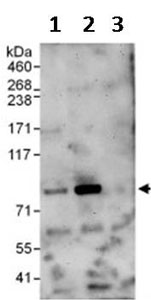 Immunoprecipitation - Anti-EHHADH antibody (ab123490)
