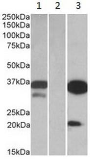 Western blot - Anti-DAPP1 antibody (ab123498)
