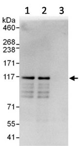 Immunoprecipitation - Anti-SH3PXD2B antibody (ab123503)