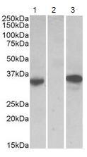 Western blot - Anti-Mast Cell Chymase antibody (ab123510)