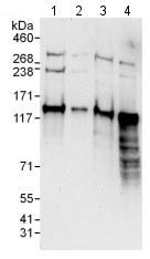 Western blot - Anti-HDAC4 antibody (ab123513)