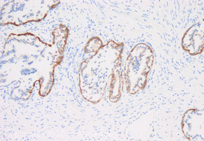 Immunohistochemistry (Formalin/PFA-fixed paraffin-embedded sections) - Anti-Ret (phospho Y1062) antibody (ab123544)