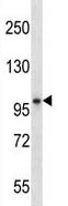 Western blot - Anti-Blood Group Kell Antigen antibody (ab123556)