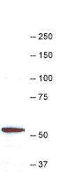 Western blot - Anti-Coronin 1a antibody (ab123574)