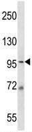 Western blot - Anti-MCM6 antibody (ab123578)