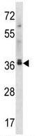 Western blot - Anti-EB2 antibody (ab123579)