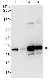 Western blot - Anti-C1orf77 antibody (ab123603)