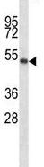 Western blot - Anti-PBX2 antibody (ab123604)
