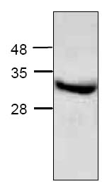 SDS-PAGE - ApoE2 protein (Human) (ab123749)