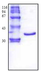 SDS-PAGE - Procathepsin K protein (Active) (ab123765)