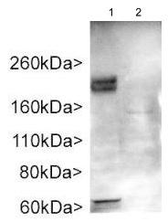 Western blot - Anti-ADCY3 antibody (ab123803)