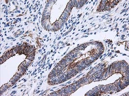 Immunohistochemistry (Formalin/PFA-fixed paraffin-embedded sections) - Anti-Apc2 antibody [1A6] (ab123855)