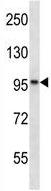 Western blot - Anti-ANKRD25 antibody (ab123868)