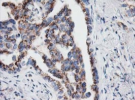 Immunohistochemistry (Formalin/PFA-fixed paraffin-embedded sections) - Anti-IRF6 antibody [2A12] (ab123880)