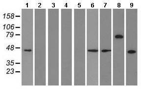Western blot - Anti-RNF86 antibody [4E5] (ab123899)