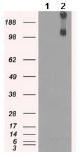 Western blot - Anti-KDM4C / GASC1 / JMJD2C antibody [5B9] (ab123900)