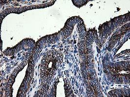 Immunohistochemistry (Formalin/PFA-fixed paraffin-embedded sections) - Anti-LGALS3BP antibody [3G8] (ab123921)