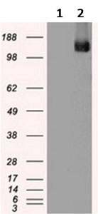 Western blot - Anti-TRPM4 antibody [10H5] (ab123936)