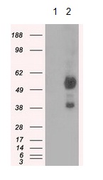 Western blot - Anti-Natriuretic Peptide Receptor C antibody [11H6] (ab123957)