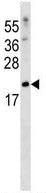 Western blot - Anti-SFRS3 antibody (ab123972)